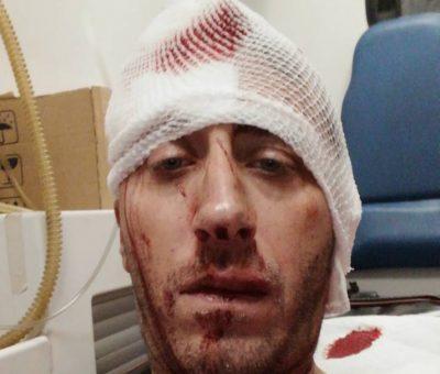 napadači pretukli metalnim šipkama novinara Vladimira Kovačevića