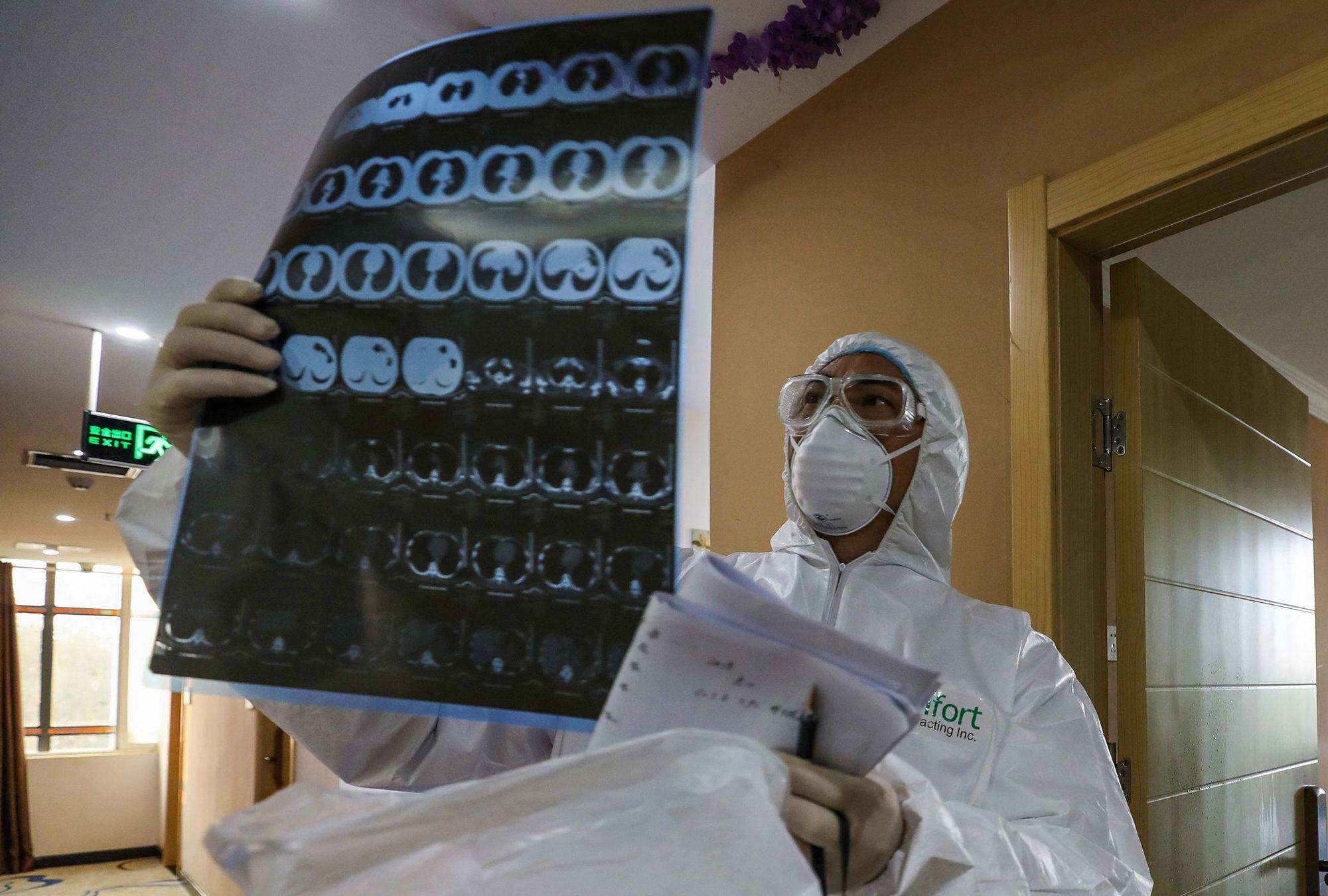 Šta korona virus radi organizmu? - Gerila